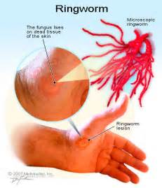 How do you get ringworms how do you get ringworm how do you get
