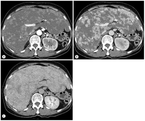 mosaic pattern perfusion peliosis hepatis presenting with massive hepatomegaly in a