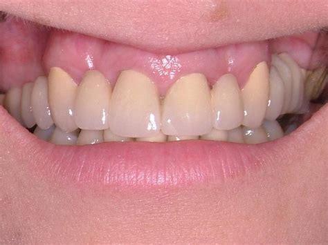 cranham dental private  nhs dentist  cranhma
