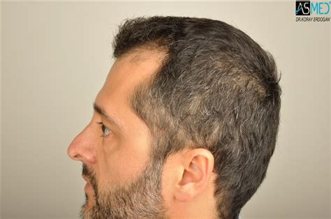 hair plugs v hair transplant dr koray erdogan asmed clinic 4064 grafts manual fue