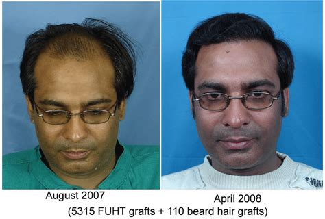 faq main hair loss hair transplant and restoration hair loss help forums i want this type of transformation