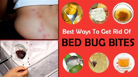 treat bed bug bites  home remedy youtube