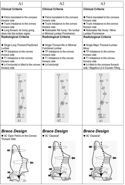 criteria design pattern three curve scoliosis pattern clinical and radiologica