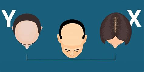 why would you lose hair from your vigian why men go bald with age business insider