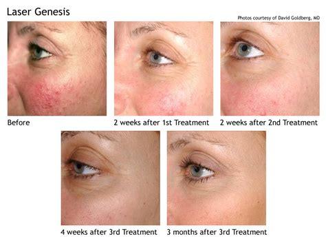 cutera laser genesis treatment laser treatments hair removal reduction laser