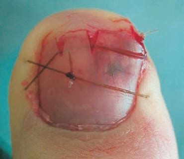 nailbed injuries part ii closing the gap
