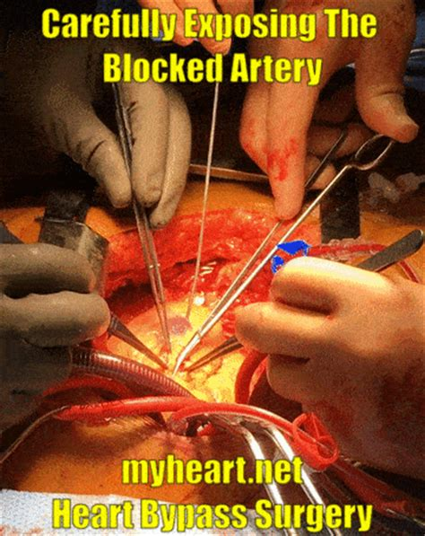 blocked arteries and open surgery bypass surgery explained in pictures