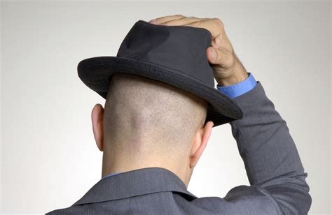 how to embrace baldness