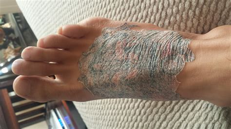 peeling tattoo help my foot looks screwed up nobody knows what to