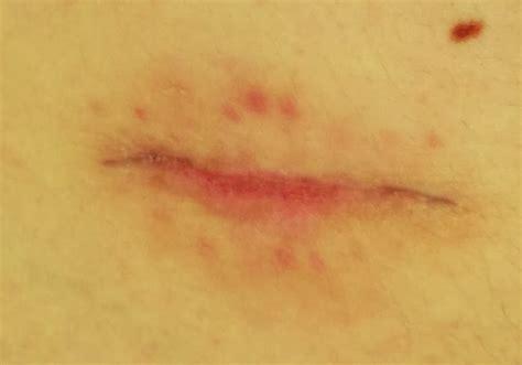 pubic hair pouch it s like this uc laparoscopic restorative proctectomy