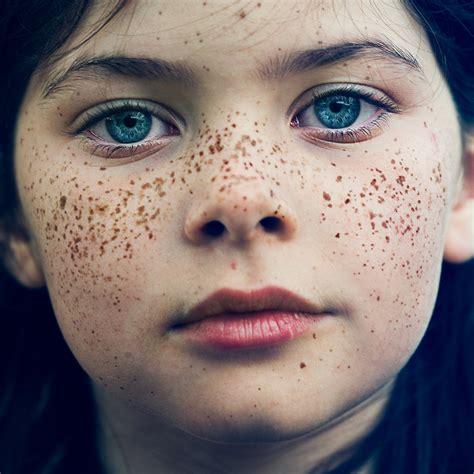 face freckles amp lsm