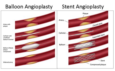 coronary angioplasty with or without stent implantation angioplasty and stenting clearwater florida