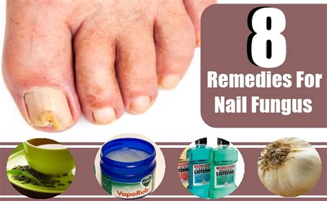 home remedy for toenail fungus with hydrogen peroxide
