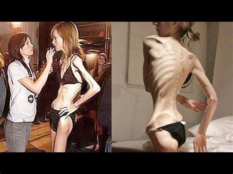 imagenes impactantes de bulimia y anorexia ni 241 as lindas de bucaramanga by okendo12345