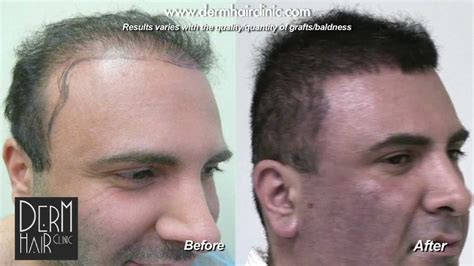 transplant hair from chest to head los angeles fue hair transplant repair using body hair
