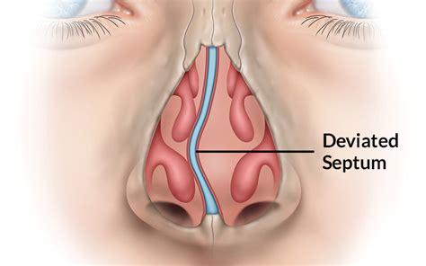 Deviated Nasal Septum Images deviated septum pic st louis sinus center