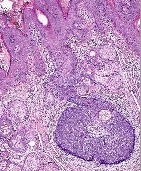 Basaloid Follicular Hamartoma Pathology Outlines by Basaloid Follicular Hamartoma Pathology Outlines Pathology Outlines Nevus Sebaceus Of
