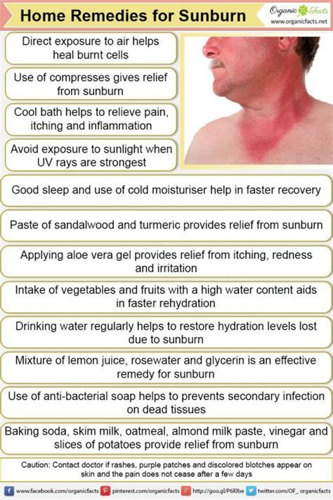 Does A Shower Help A Sunburn by 17 Best Ideas About Home Remedies For Sunburn On