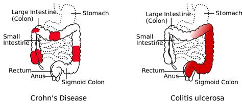 Crohn S Stool by File Crohn S Disease Vs Colitis Ulcerosa Svg Wikimedia