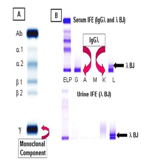 protein electrophoresis urine protein electrophoresis portal myhealth