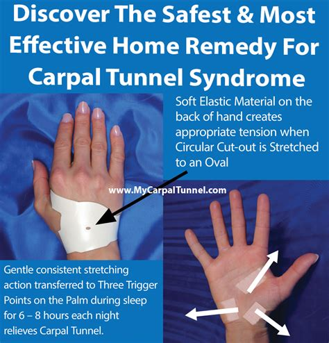 home remedy for carpal tunnel carpal tunnel