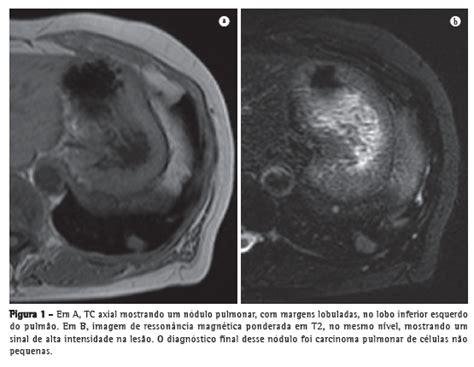 Tc Rm jornal brasileiro de pneumologia resson 226 ncia magn 233 tica de pulm 227 o um novo passo no estudo das