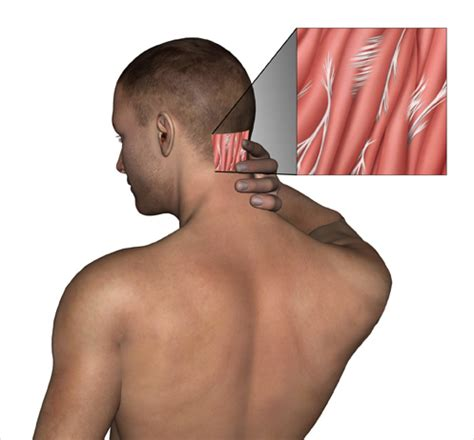 neck pain after c section neck pain adhesions drug free non surgical treatment