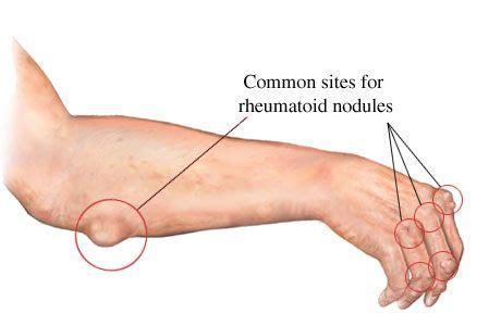 sedere molle ra common rheumatoid nodule rheumatoid arthritis