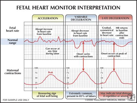 heart monitor pattern fetal heart monitor interpretation nursing so imagine