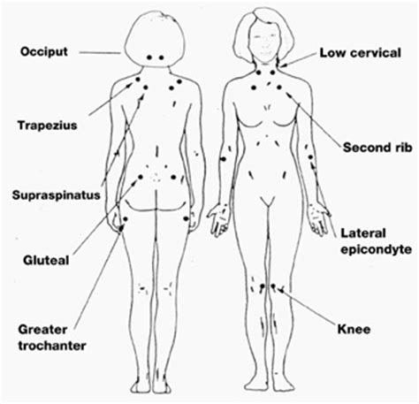 18 tender points of fibromyalgia diagram 142 best images about pressure points on
