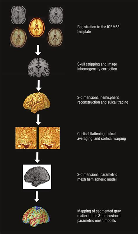 schemas matching pattern or name three dimensional gray matter atrophy mapping in mild