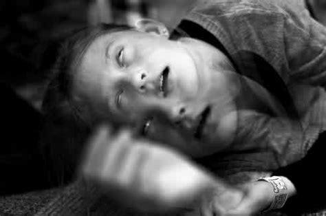 ciri ciri penyakit epilepsi duniapelajarcom