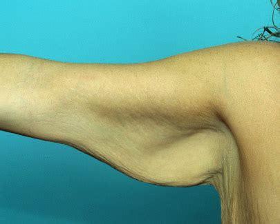 explore plastic surgery dr barry eppley arm lift arm lifts archives