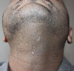 transplant hair from chest to head why would someone go for body hair transplant surgery quora