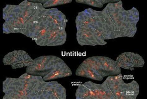 human brain mapping international conference on human brain mapping deja vu