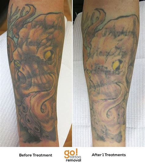 tattoo removal in delaware 946 best removal in progress images on