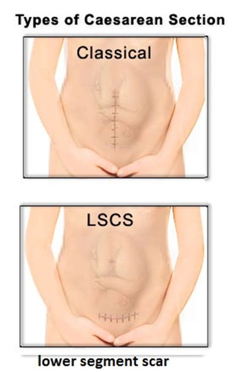 c section scar pain in pregnancy birth injury attorneys uterine womb rupture