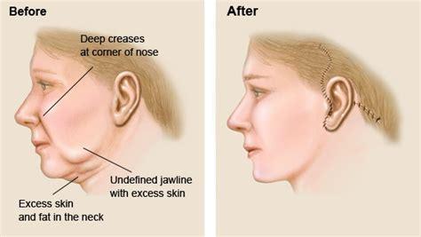 hair jaw ianya 9200 facelift ajmal clinics specialized plastic surgery center