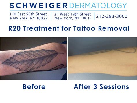 tattoo removal in new york new removal techniques get rid of ink in