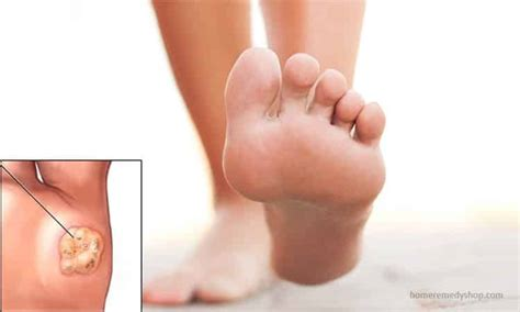 11 home remedies for plantar warts that work wonders