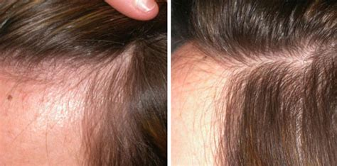 womens hair break at temple women s hair transplant before and after gallery dr