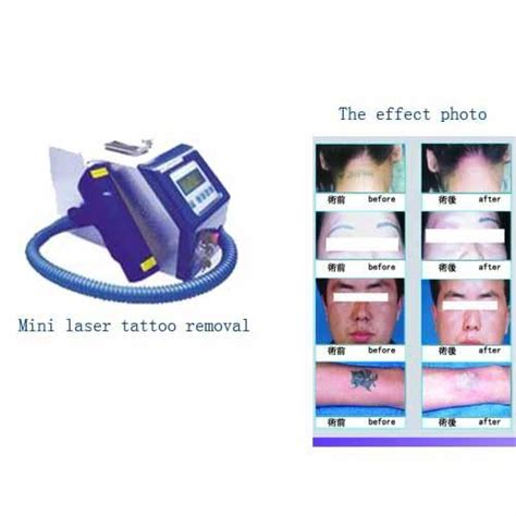 best tattoo removal products best removal machine with ce popular in