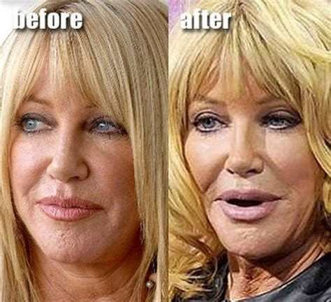suzanne somers celebrity plastic surgery 24 suzanne somers plastic surgery gone wrong