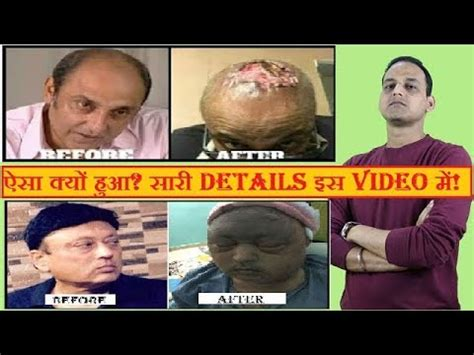 akshay kumar hair replacements hair transplant surgery surgeon dr suneet soni india