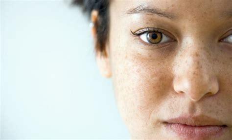 Flek Masker Pigment Wajah madu hitam pahit mau tahu manfaatnya eramuslim