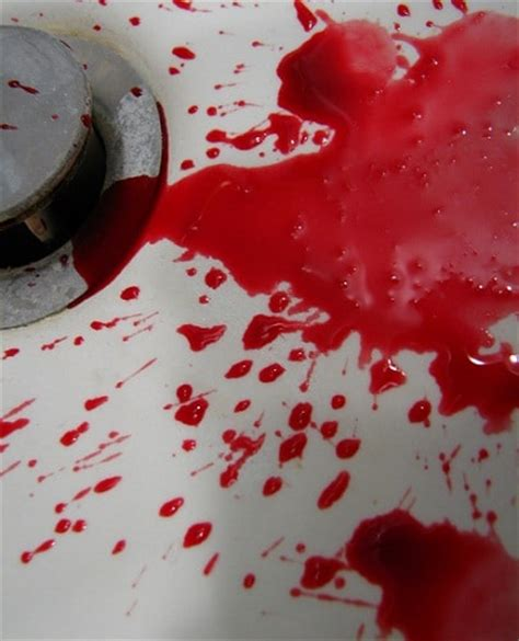 throwing up blood vomiting blood causes driverlayer search engine