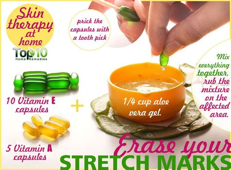 healthy fats to get period back how to get rid of stretch marks fast top 10 home remedies