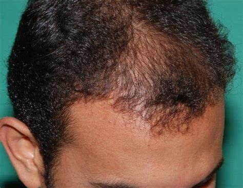 female mid frontal balding 2249 grafts with dr konior hair loss surgery before
