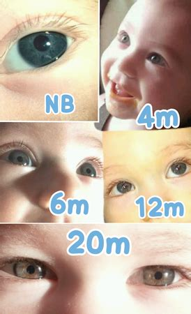 babies change color btdt eye color progression pics babycenter