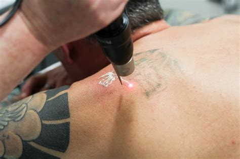 does laser tattoo removal leave a scar faq does laser removal hurt andrea catton laser